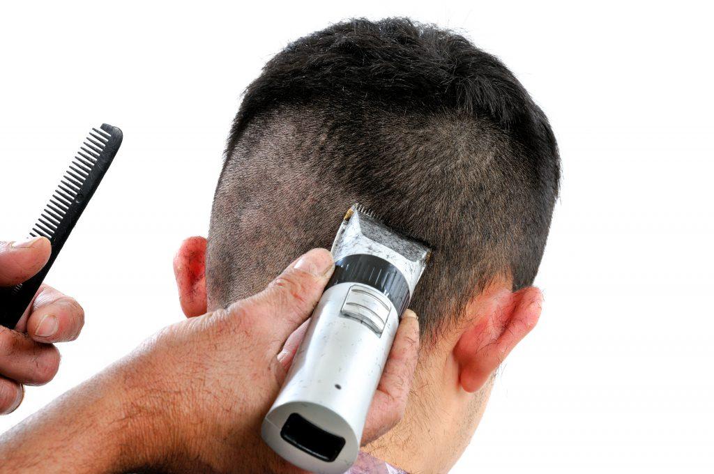 Vorbereitung des Hinterkopfes für die Entnahme der Haarwurzeln bei einer Haartransplantation