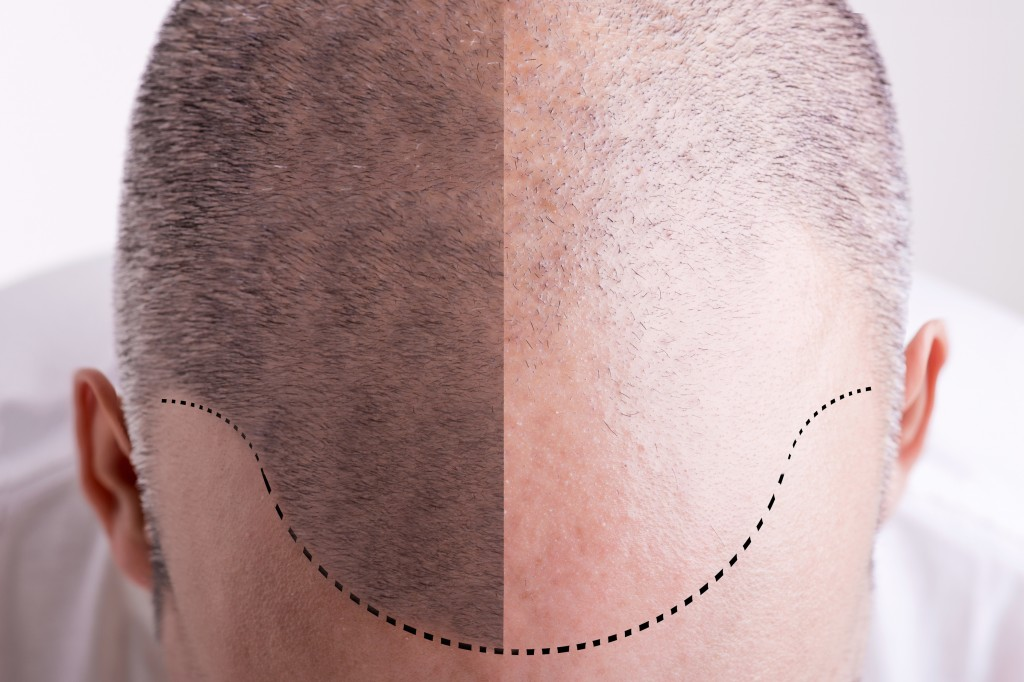 Haartransplantation in Hannover