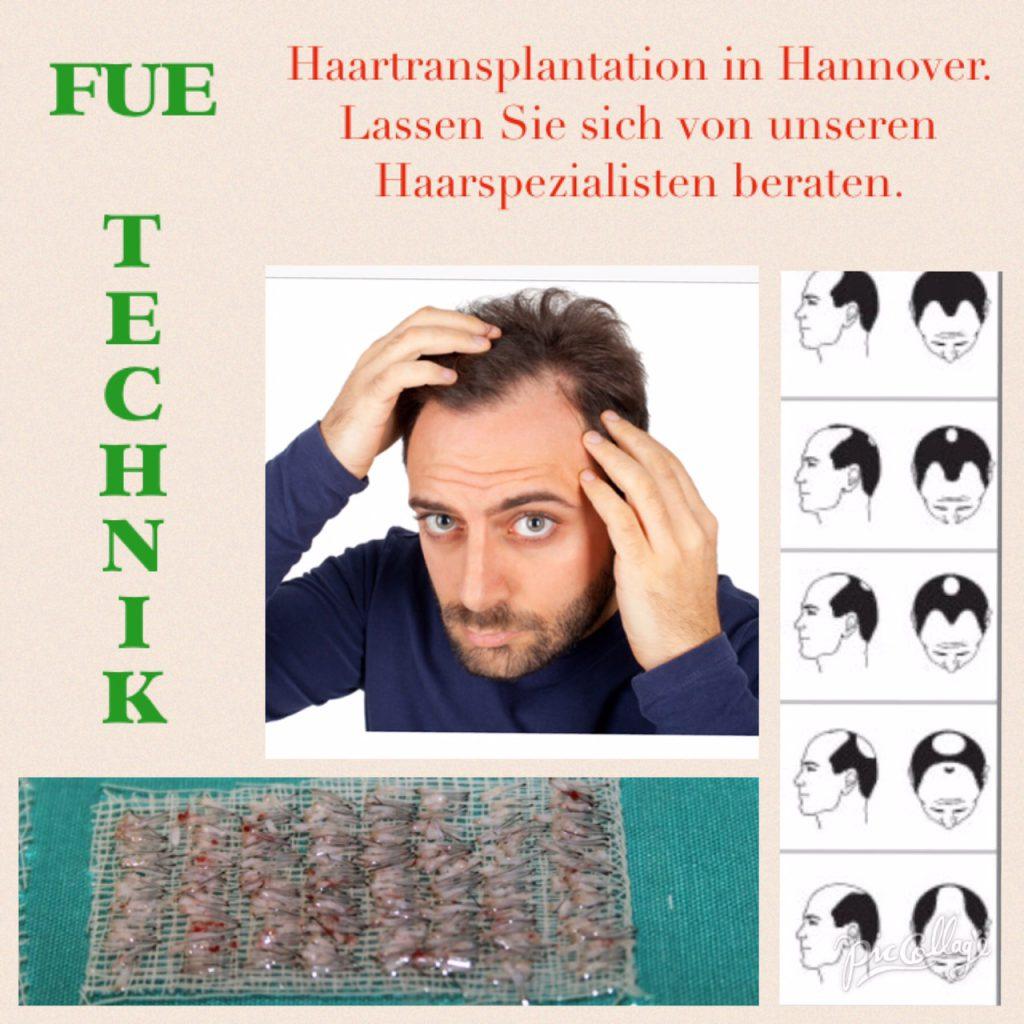 Haarausfall - Ursachen und Behandlung