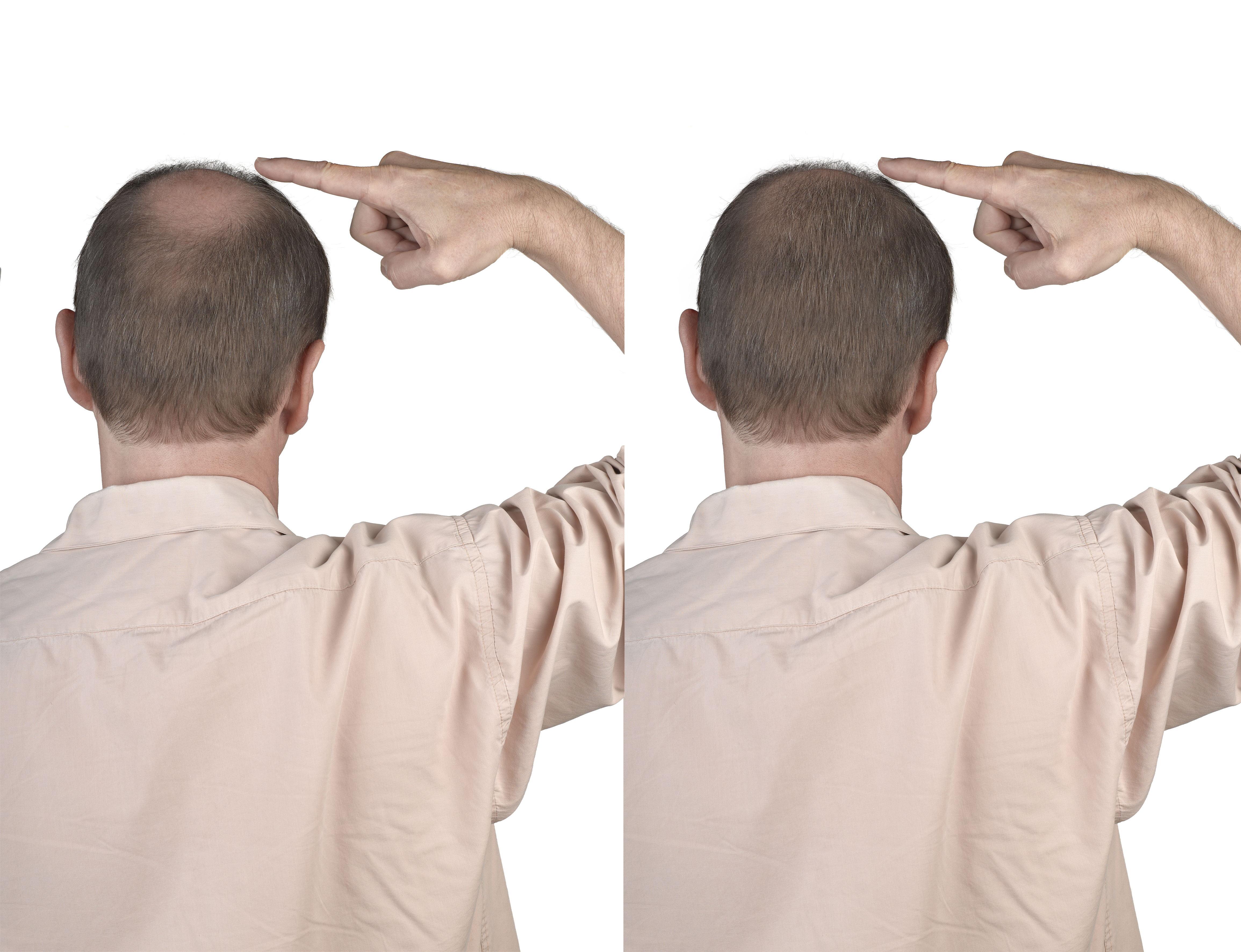 Human hair loss solution concept - adult man hand pointing his bald head