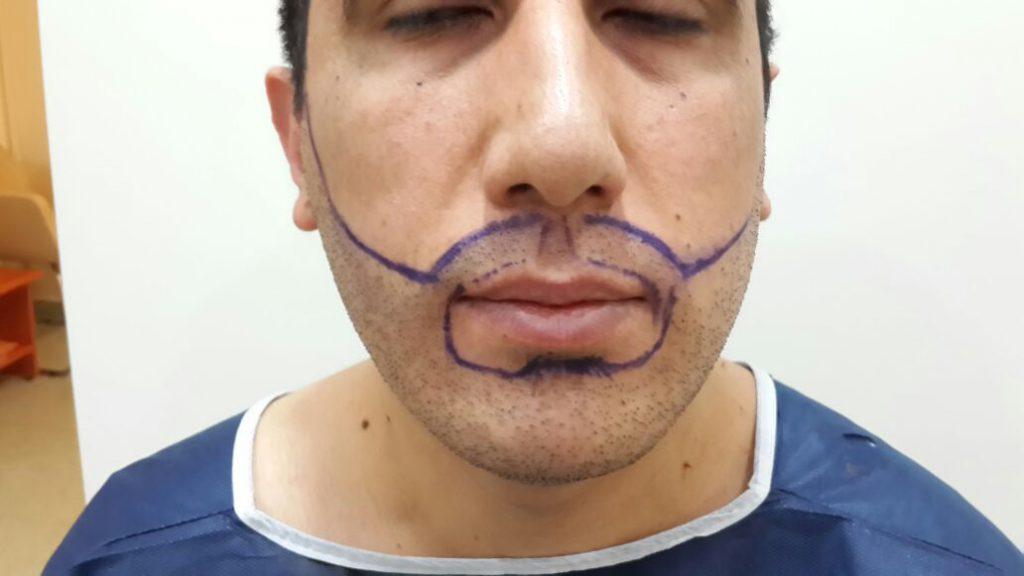 Angezeichnete Konturen für eine spätere Barttransplantaion mit Eigenhaar